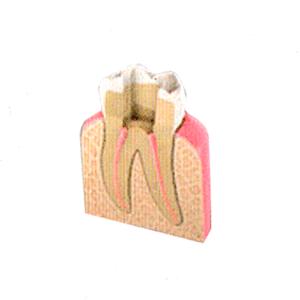 Endodoncia paso 3