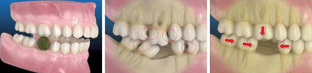 consecuencias de la pérdida de dientes 1