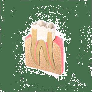 Endodoncia paso 4