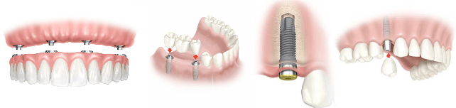 Implantes dentales en Calviá