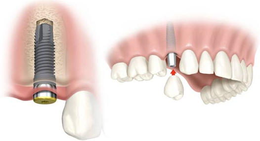 Implantes dentales en Inca