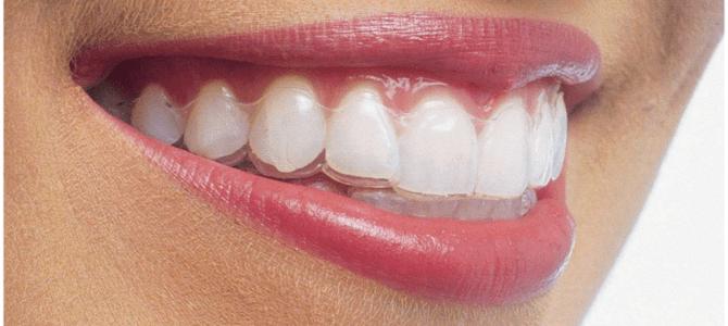 La ortodoncia en adultos