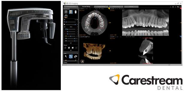 carestream-cs-8100-3d
