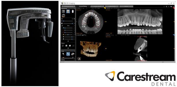 carestream-cs-8100-3d
