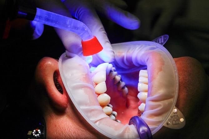 Estética dental blanqueamiento dental Palma de Mallorca