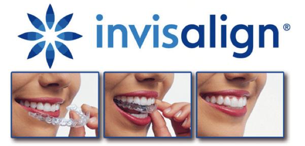 Invisalign, Ortodoncia invisible para una bonita sonrisa