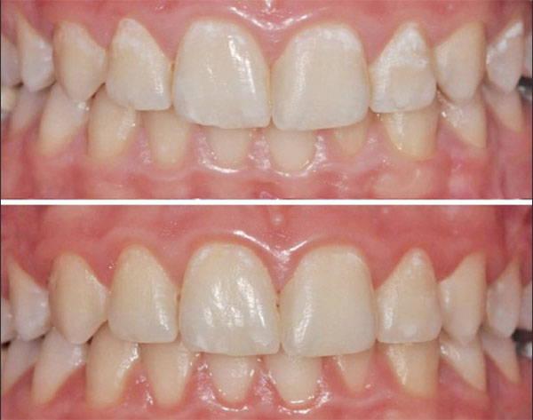 Remineralización dental